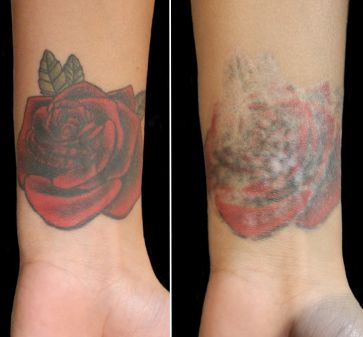 Three Things You Need to Know Before Tattoo Removal
