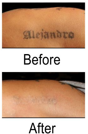 Benefits of Using Tattoo Removal Machines