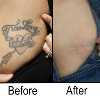 Are Tattoo Removal Creams Really Effective?