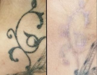How to Choose the Best Tattoo Removal Training School